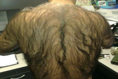 Волос на теле много